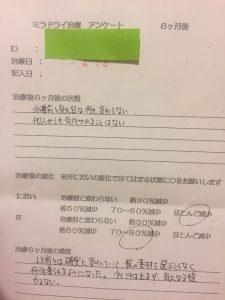 ミラドライ K・Tさん 治療6ヶ月後 滋賀大津石山院