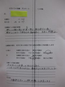 ミラドライ Ⅰ・Aさん 治療1ヶ月後